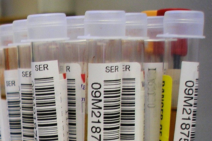 03292018_blood_test_vials_wiki