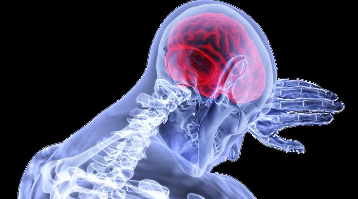 COVID-19 brain disease