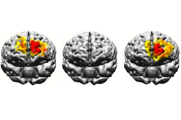 Brain Electrostimulation Boston University 04092019
