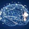 Alzheimer's disease 04252019