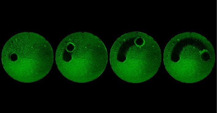 dental microrobots plaque