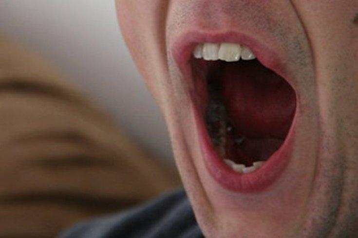 Man Yawn 04302019