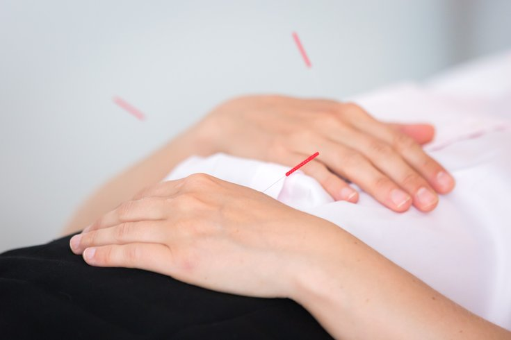 Carroll - Acupuncture