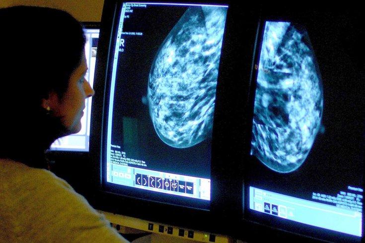 Cryoablation breast cancer