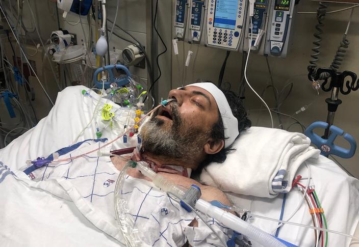 Penn Lung Transplant