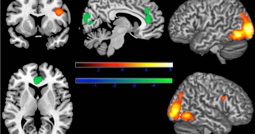 We have a subconscious negative brain response to disfigured