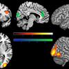 implicit bias disfigured faces