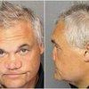 Artie Lange nose mugshot