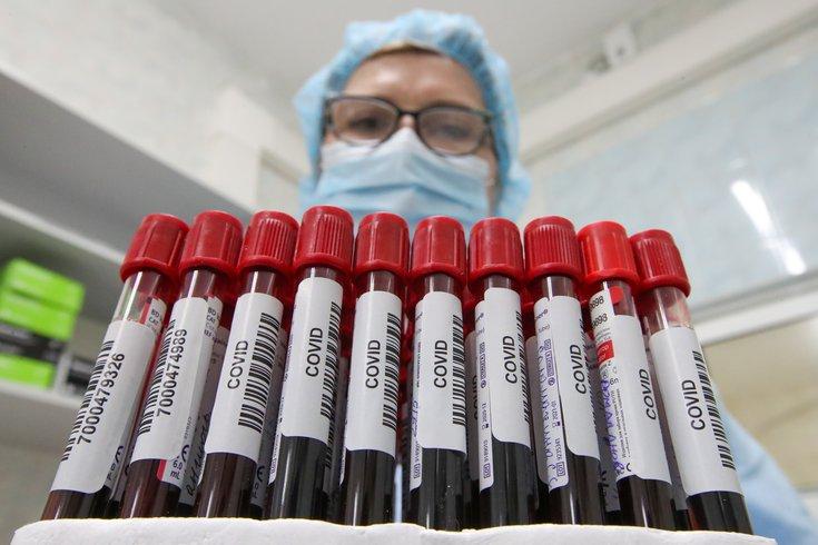 Antibody Tests COVID-19