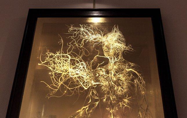 Carroll - Mind Illuminated Exhibit Mutter Museum