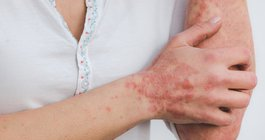Food and skin inflammation
