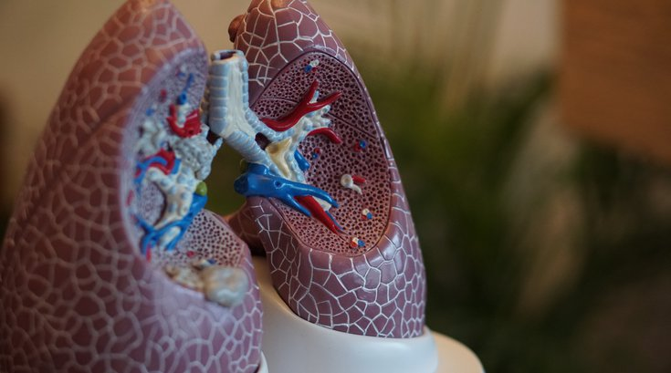 New lung cancer screening guidelines