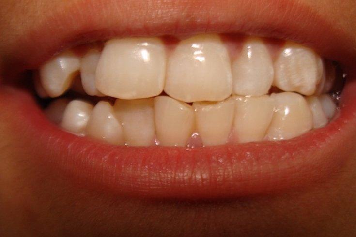boy hidden teeth removed