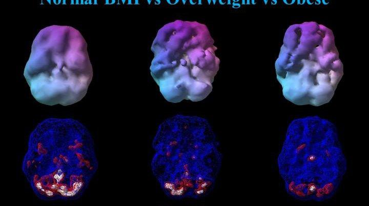 Brain Scans Obesity