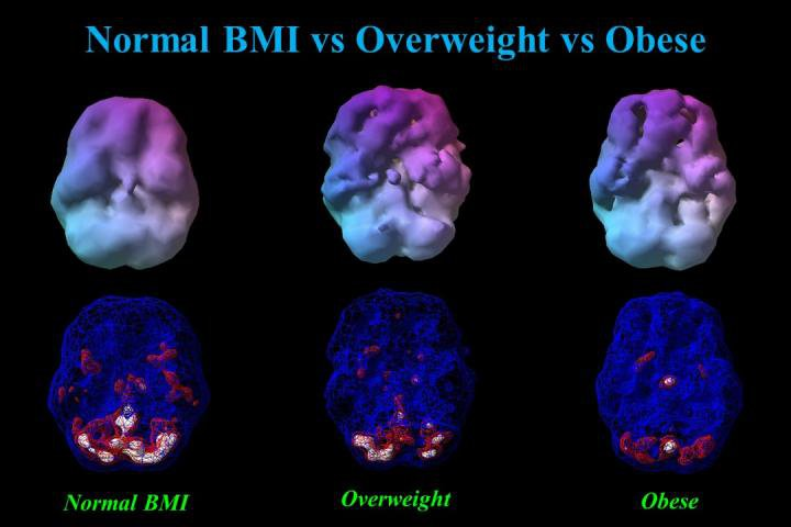 Brain Scans Obesity