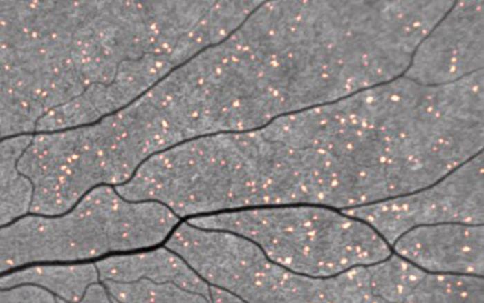 Amyloid Retinal Spots