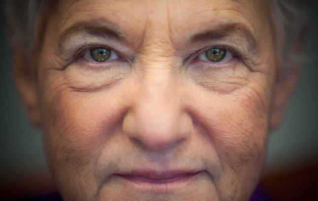 Carroll - Lynn Abraham Eyes