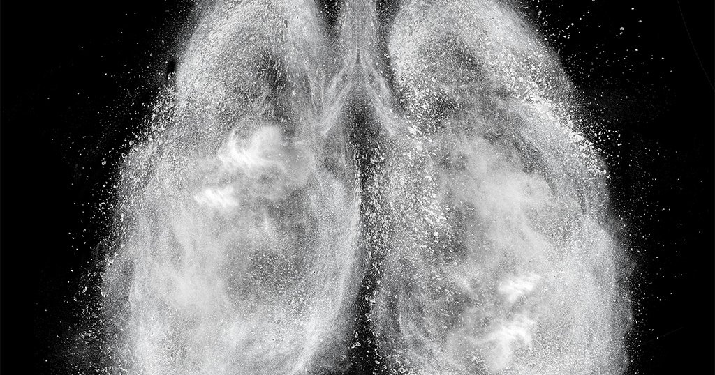 in reported CDC: lung illness  vaping Third from death