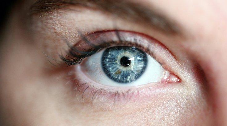 Dementia Eye Conditions