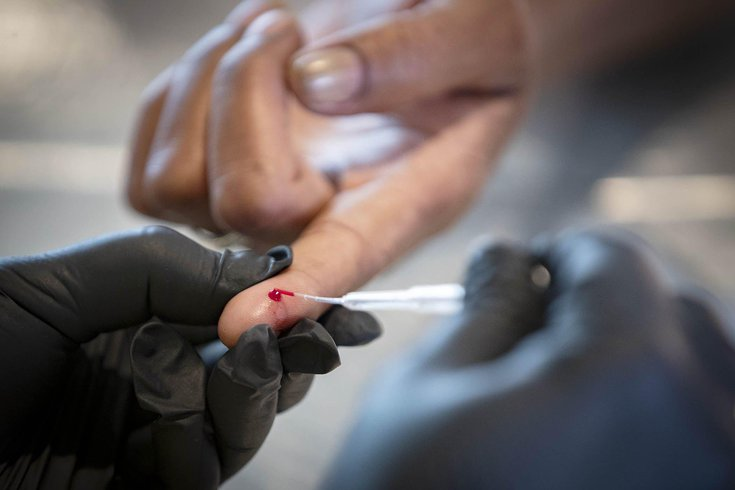 Chester County advaite antibody