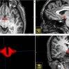 Birth Control Effect Brain