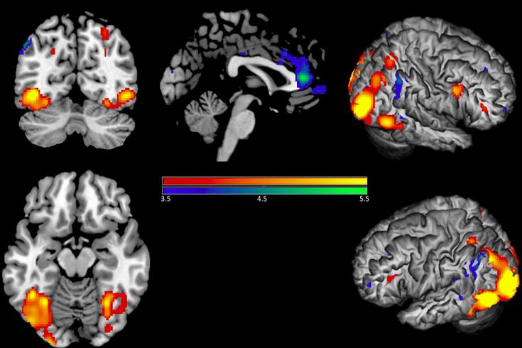 Brain_Image_Deactivations_Empathy