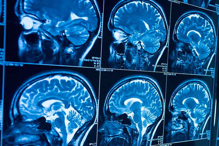 chop looks to brain scans for breakthrough in early
