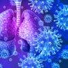 COVID-19 pneumonia lungs