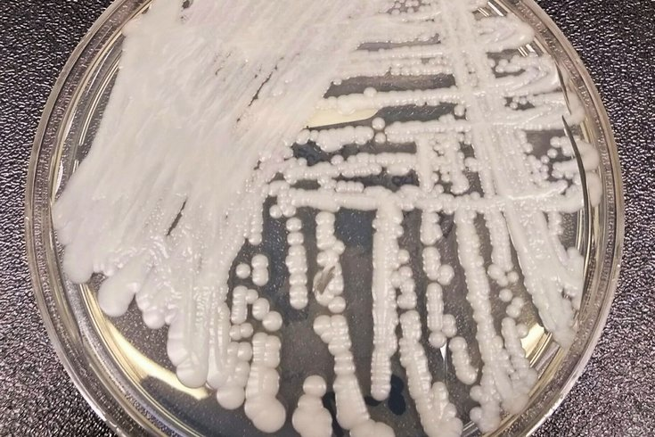 Candida auris global warming study