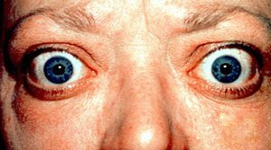 Graves' Eye Disease