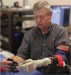 Prosthetic Arm Luke Skywalker Star Wars Keven Walgamott