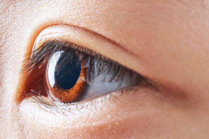 MiSight Contact Lenses Myopia FDA Approval