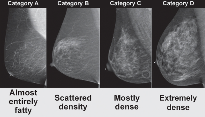 Extremely dense breast
