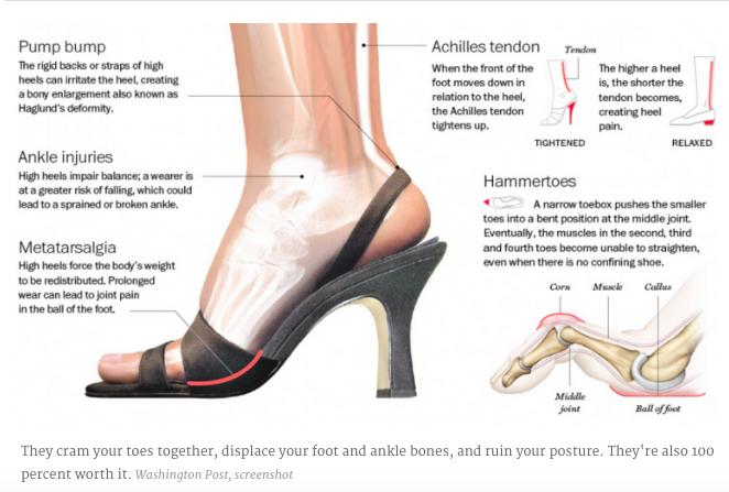 Shoe Pain
