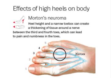 Morton's Neuroma (Intermetatarsal Neuroma)