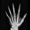 Penn Broken Bones
