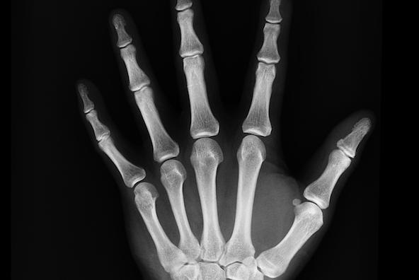 X_ray_penn_bones.original.png