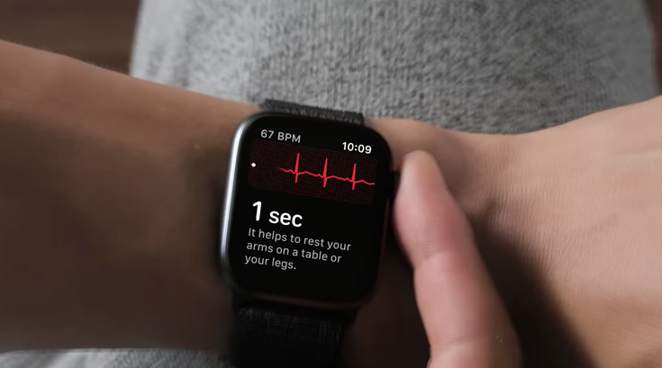 EKG Apple Watch