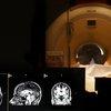 brain_scan_traumatic_brain_injury_sipa