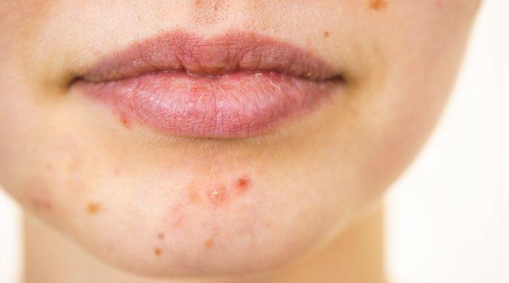 Adult acne treatment options