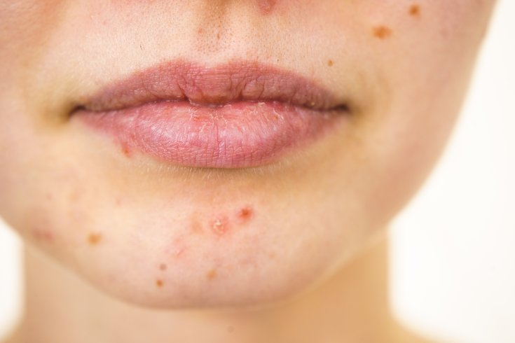 Adult acne treatment options