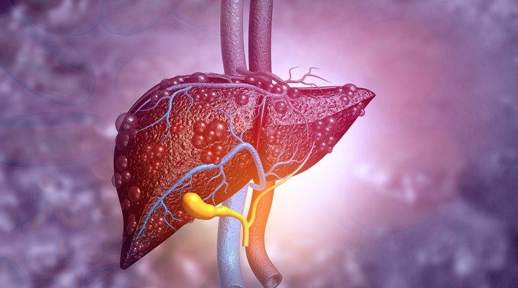 Diseased liver llustration