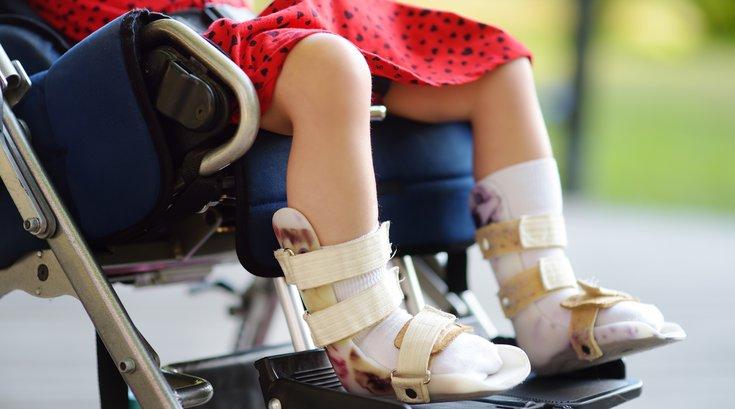 Disabled child sitting in wheelchair.