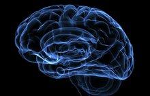 Limited - Brain - Alzheimer's Association - Sponsored Content
