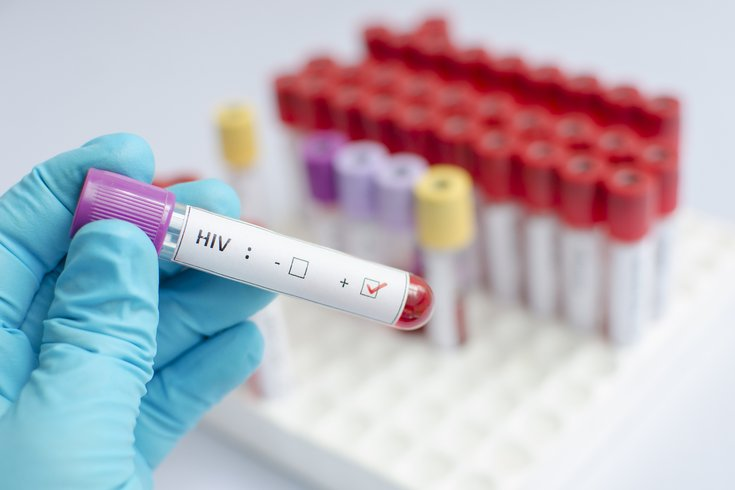HIV Positive Blood Test