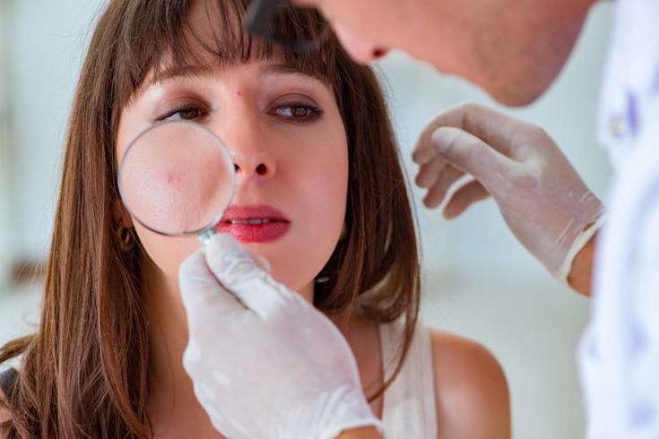 Examine Mole Skin Cancer