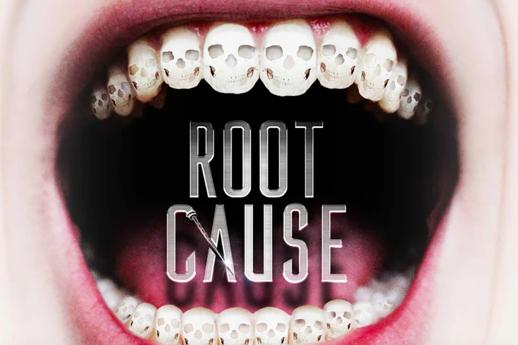 Documentary linking root canals to cancer drilled by
