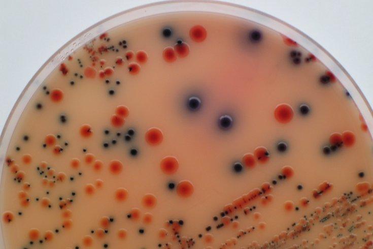 Salmonella petri dish